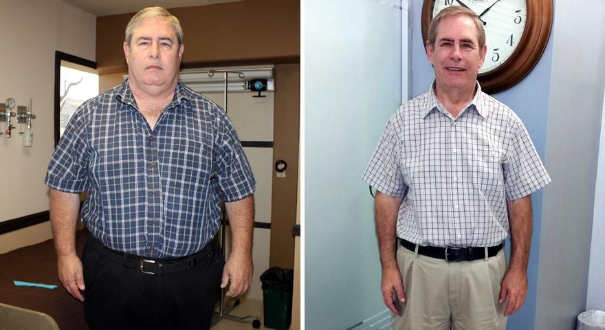 Bariatric Surgery 4 Health Gastric Sleeve